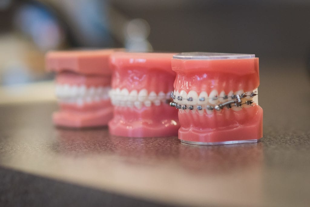 Shot of 3 teeth molds showing different types of braces