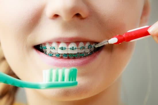 The Importance of Dental Hygiene with Braces