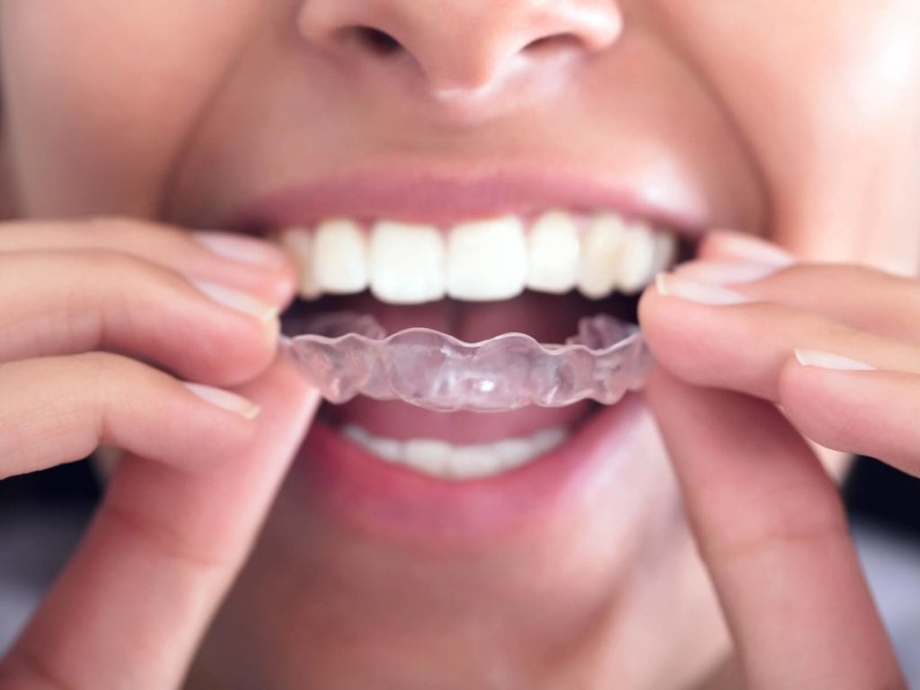 Invisalign for overbites