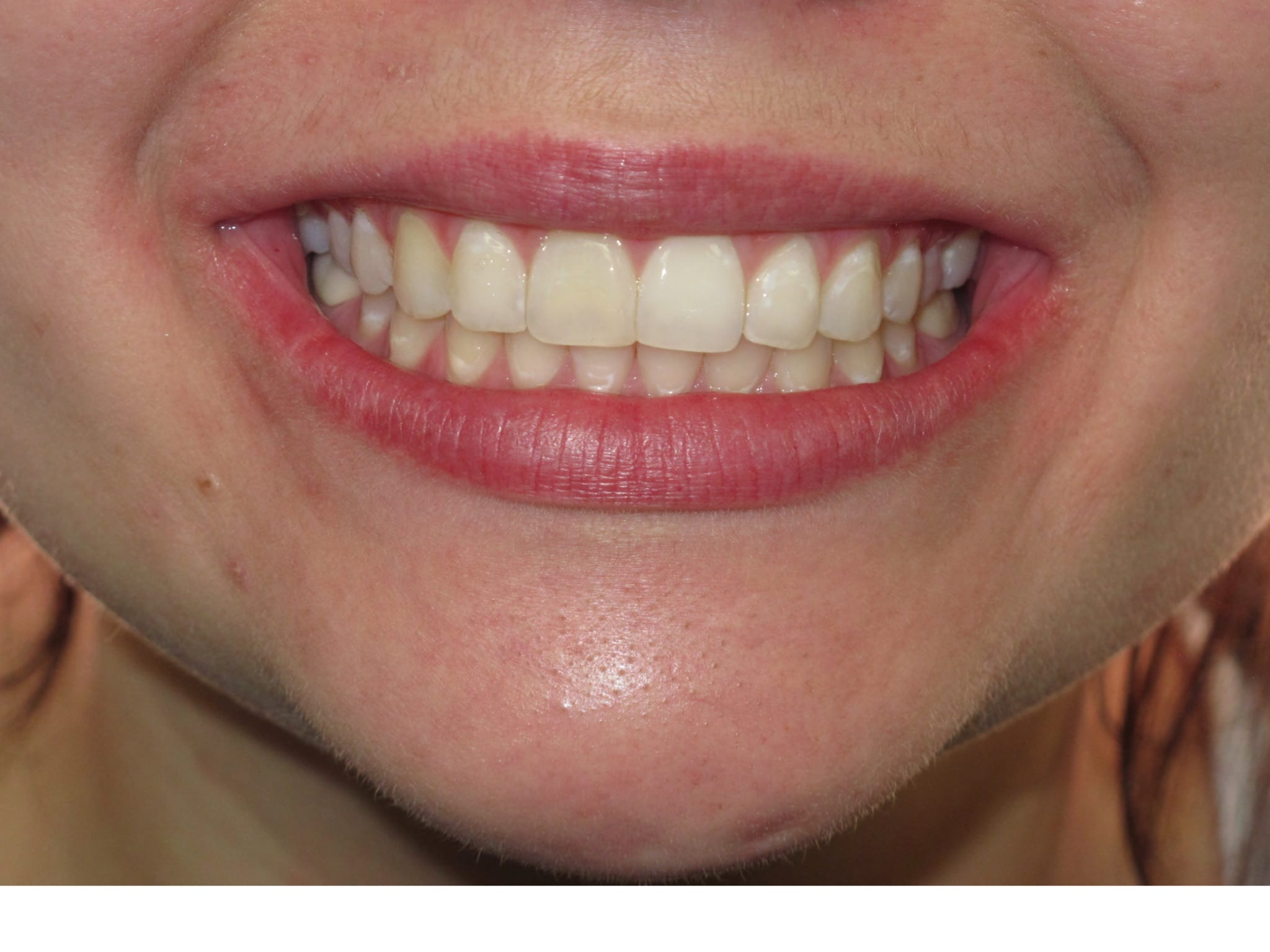 Left Intraoral Photo