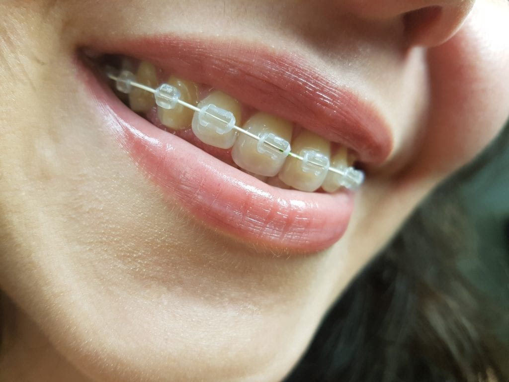 braces, How much do braces cost?