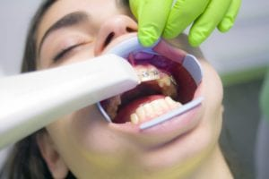 How Are Braces Put On?