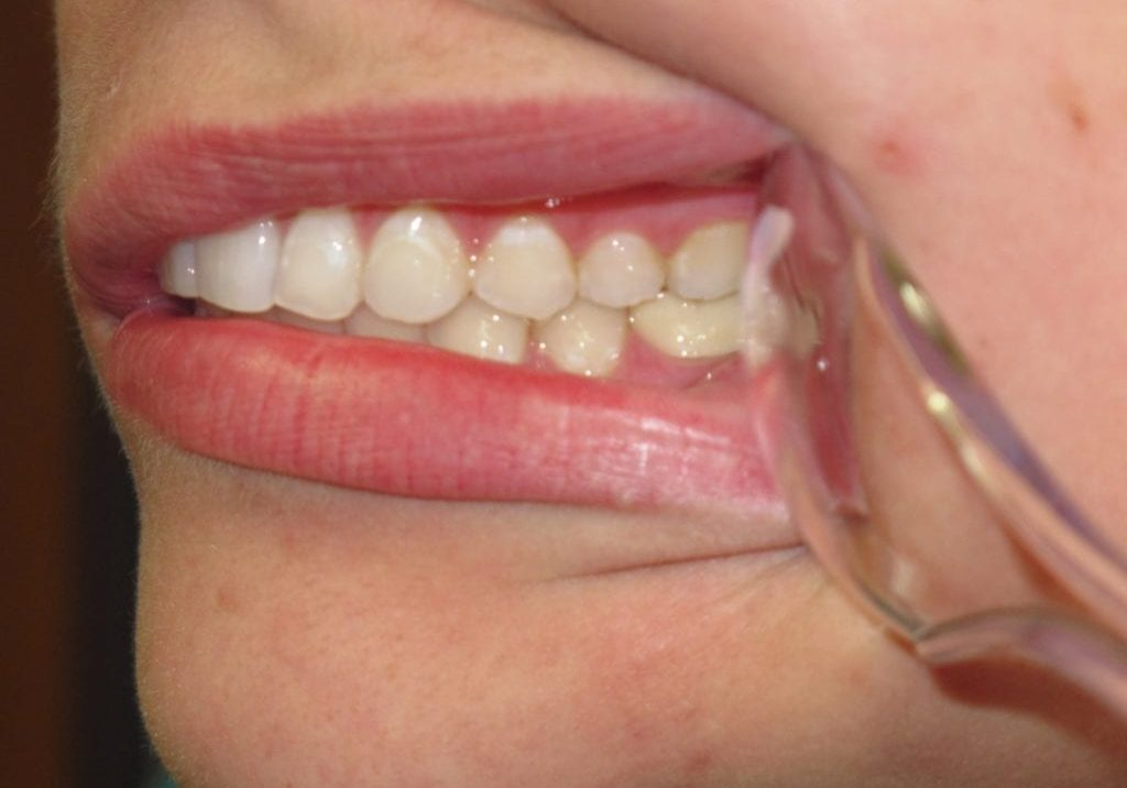 Right Intraoral Photo