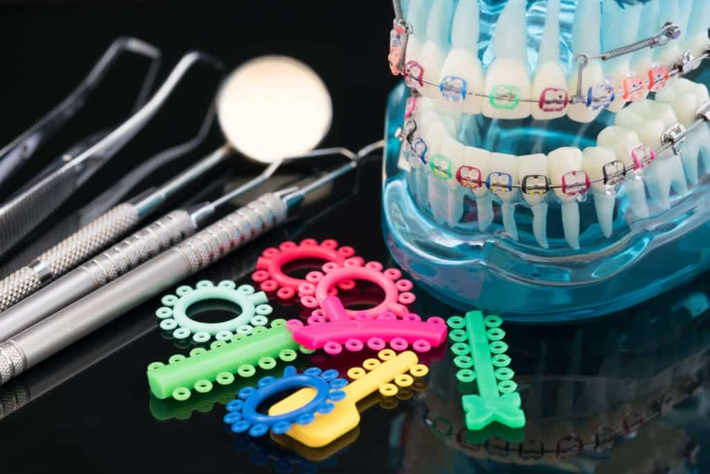 dentist tools and orthodontic model.