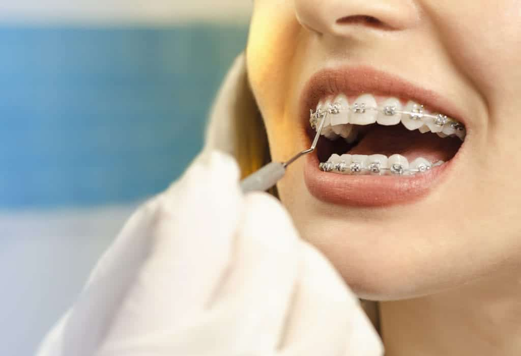 Closeup dental braces checkup