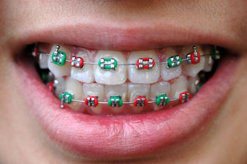 Image of holiday colored braces