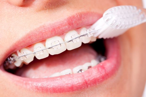 national-orthodontic-health-month