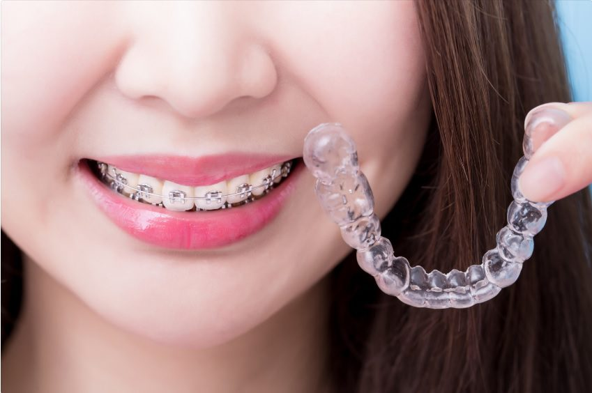Which is better Invisalign or braces?