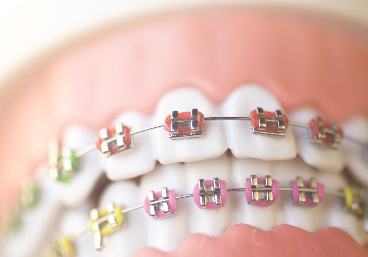 Close up of a model mouth with braces and wires and brackets.