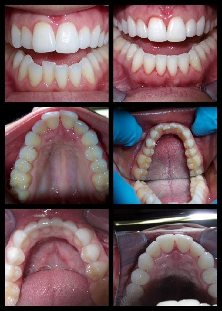 Coon Taylor Invisalign before and after