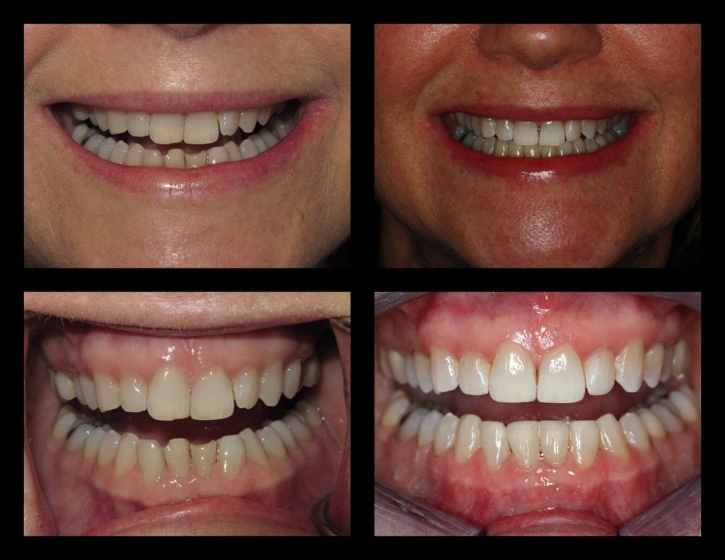 D'Arrigo, Kathy Invisalign and bonding