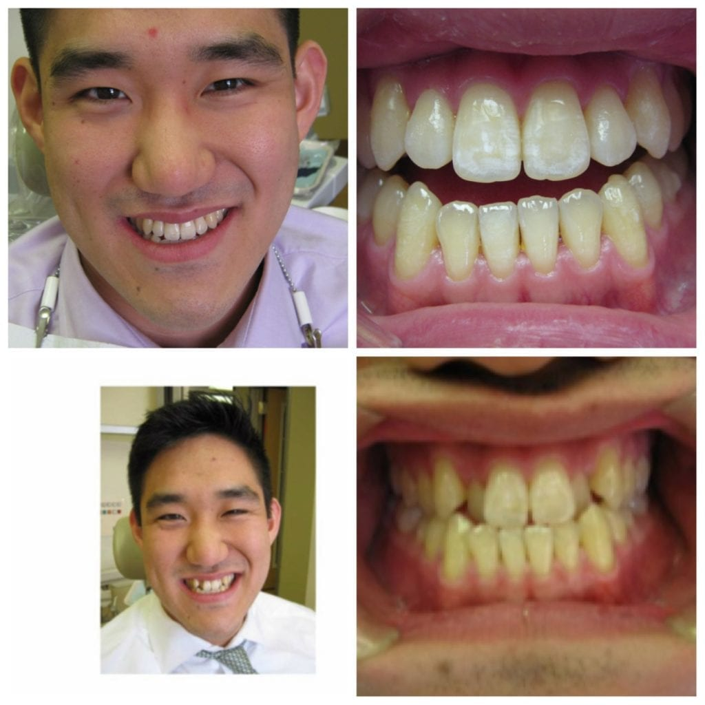Invisalign before.after