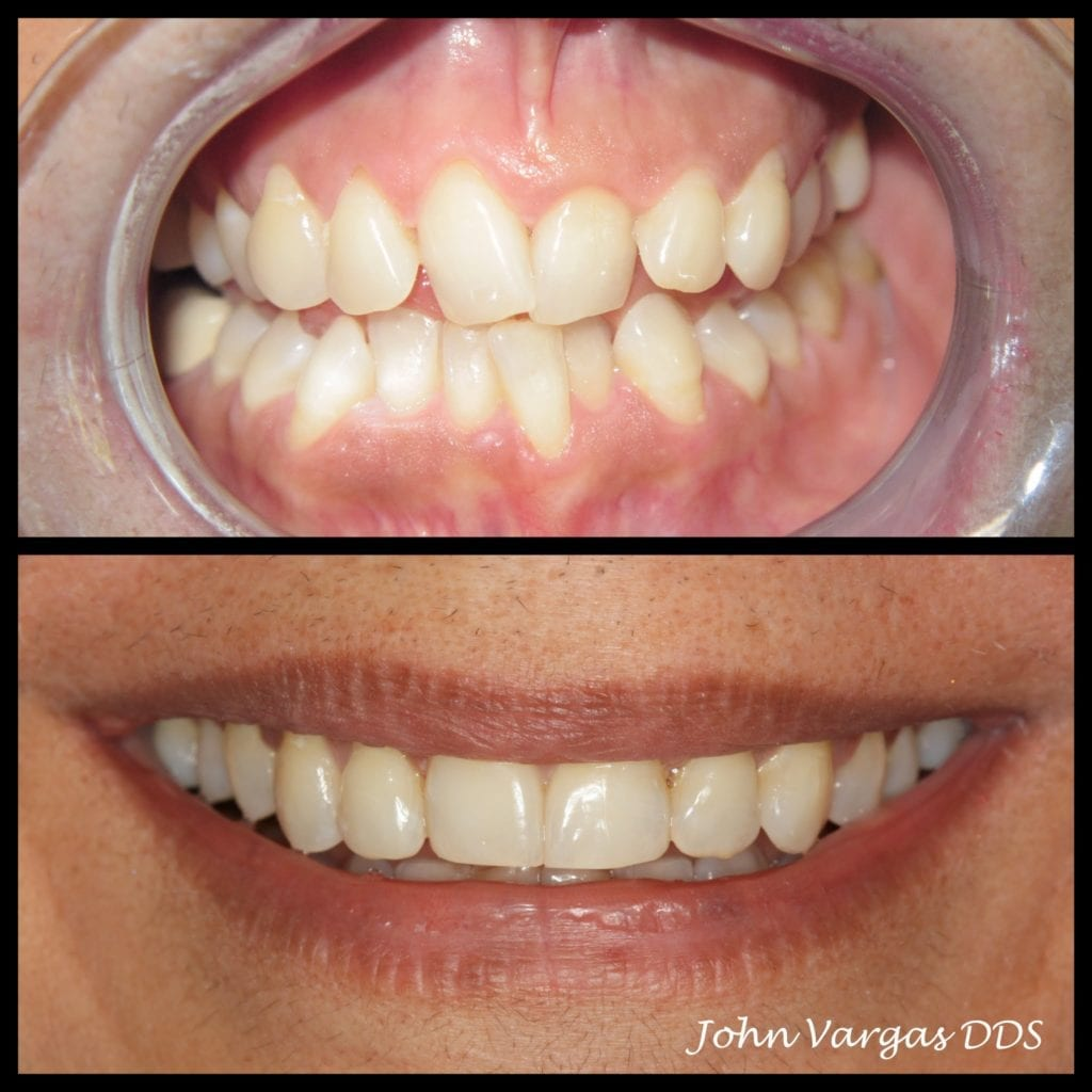 Pasricha, Harbinder Finish Invisalign2