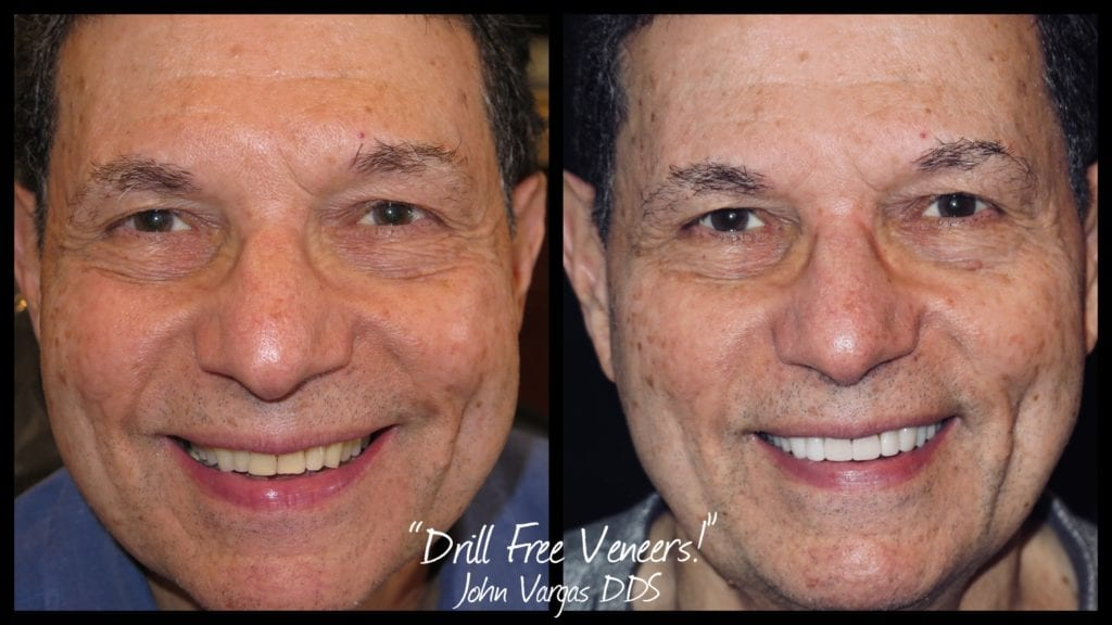 Before & After photo of no-drill veneers by Dr. John Vargas