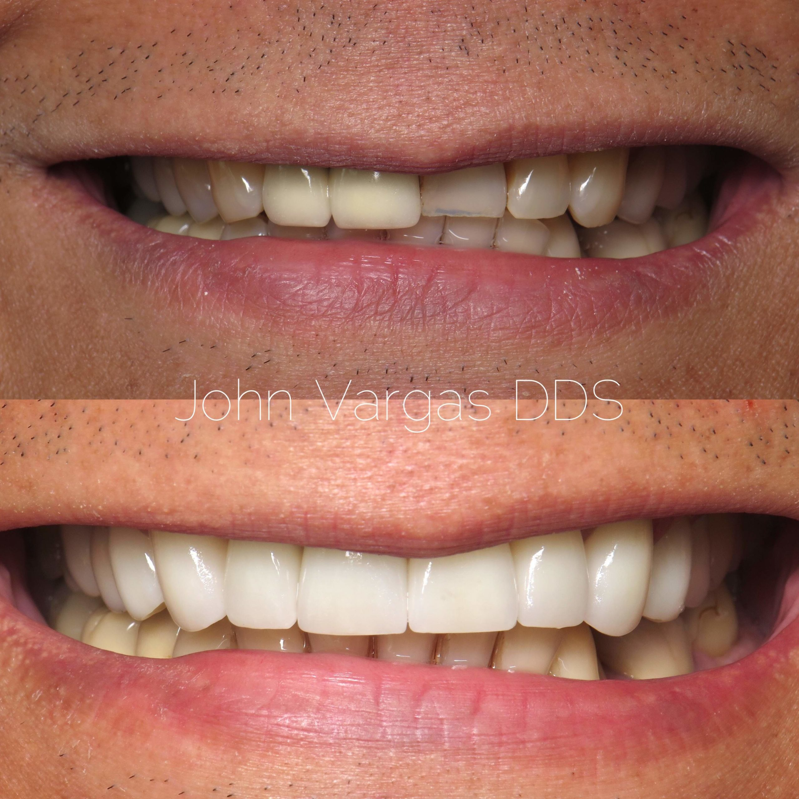 Veneers before and after by Chappaqua Smiles