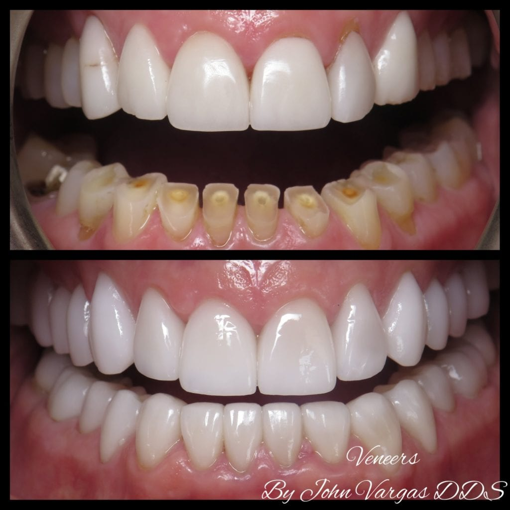 Worn teeth before & after by Chappaqua Smiles