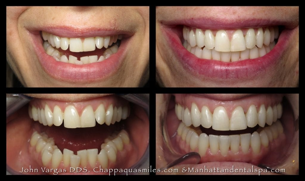 Before and after Invisalign treatment with Chappaqua Smiles